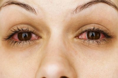 yeux rouge cannabis